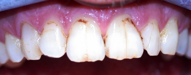 Marked & Stained Teeth