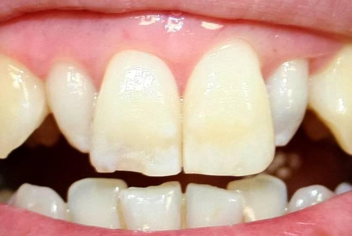Defective Shaped Teeth