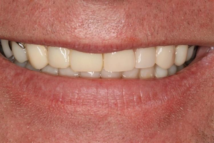 Old Worn Dentures