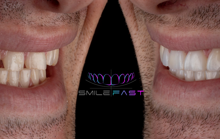 The Instant Smile Makeover Revolution Has Arrived