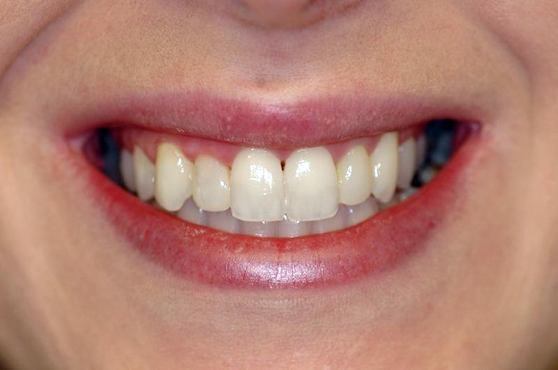Aligned Teeth